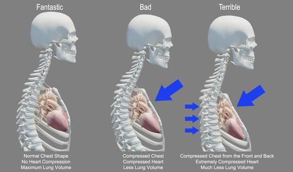 Bad-Posture-and-Death